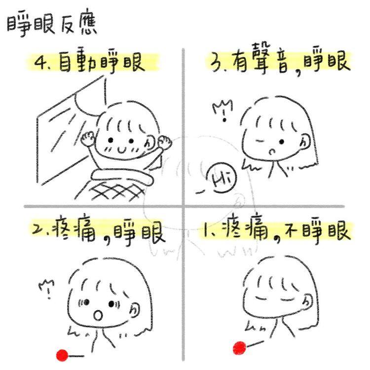 睜眼反應(E, Eye opening)